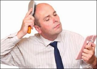 الكشف عن علاج جديد لعلاج الصلع - فقدان الشعر