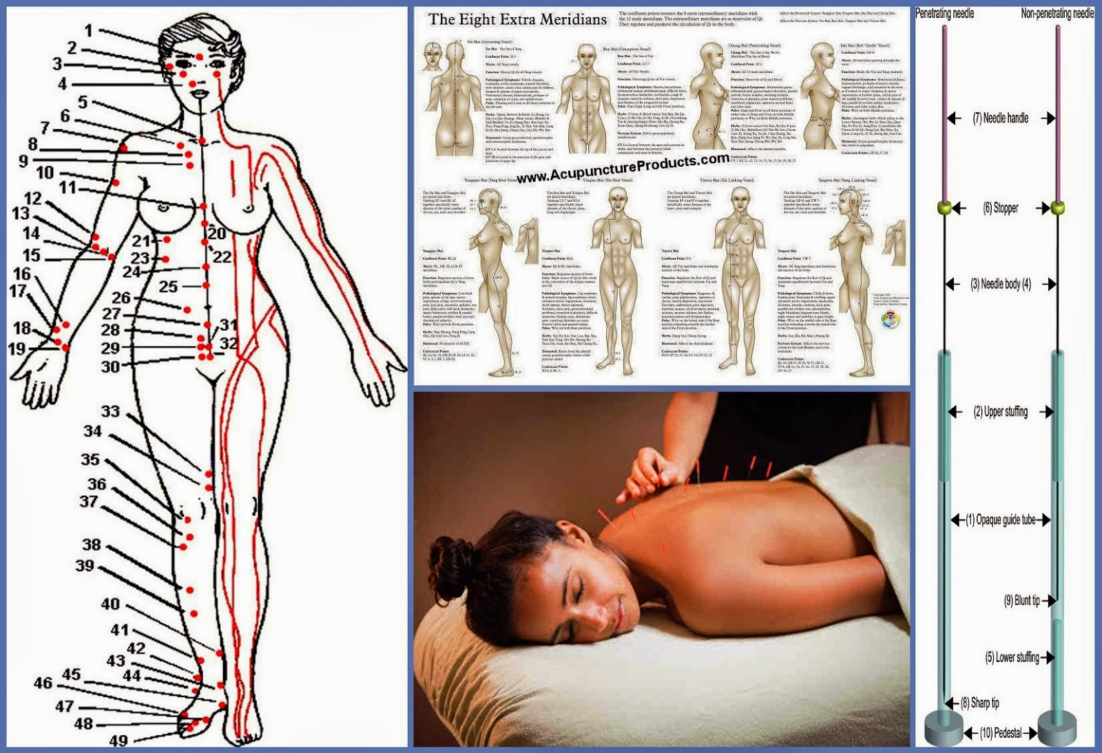 Acupuncture Clinic | Business Ideas