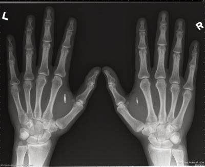 diaforetiko.gr : chip2 ΣΟΚ: Yποχρεωτικό θα είναι το Microchip για όλα τα βρέφη από το Μάιο του 2014!!!