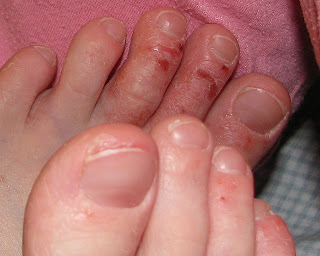 Zdjęcie przedstawiające atopowe zapalenie skóry u dziecka