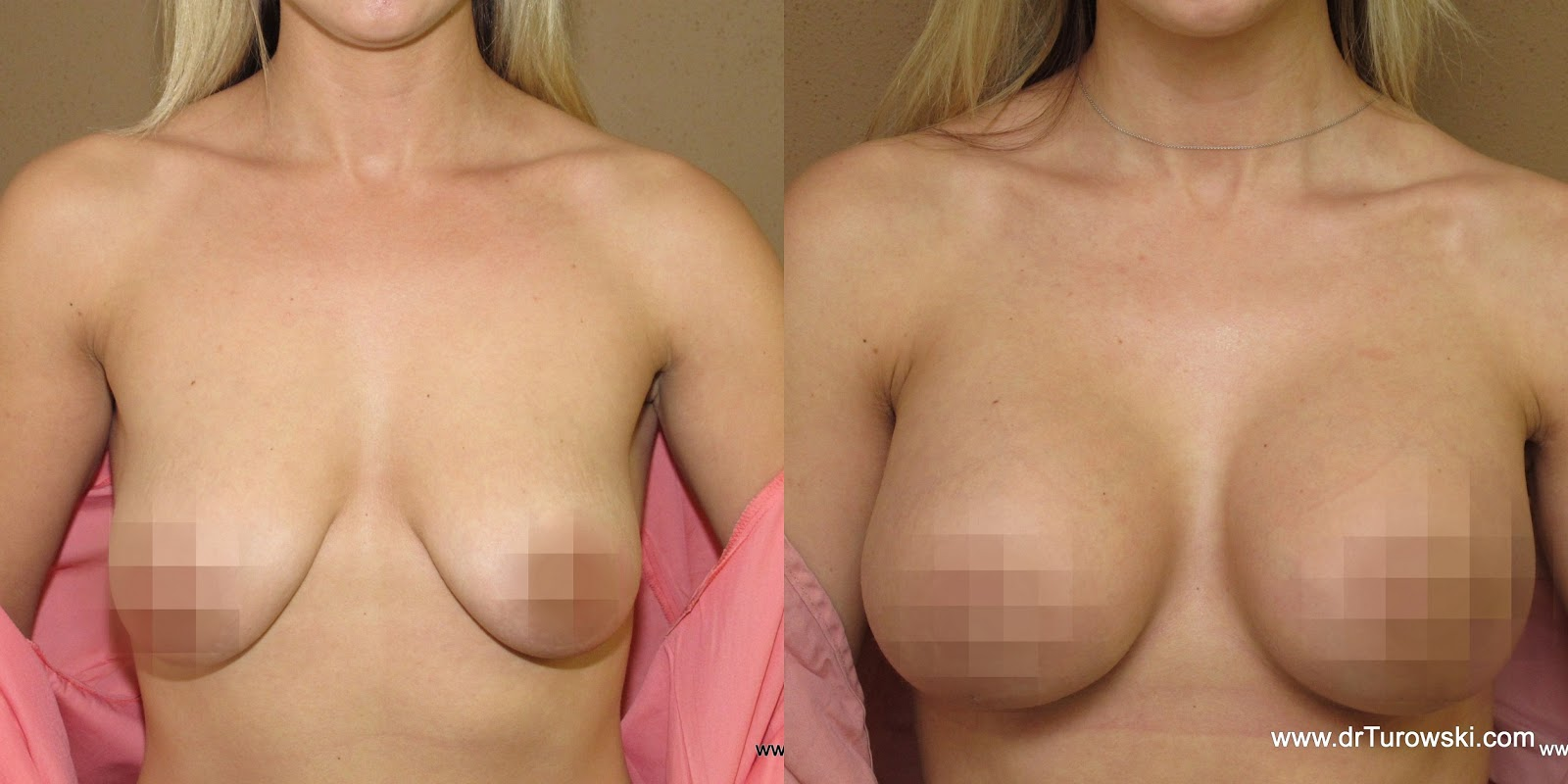 breast before after breastfeeding
