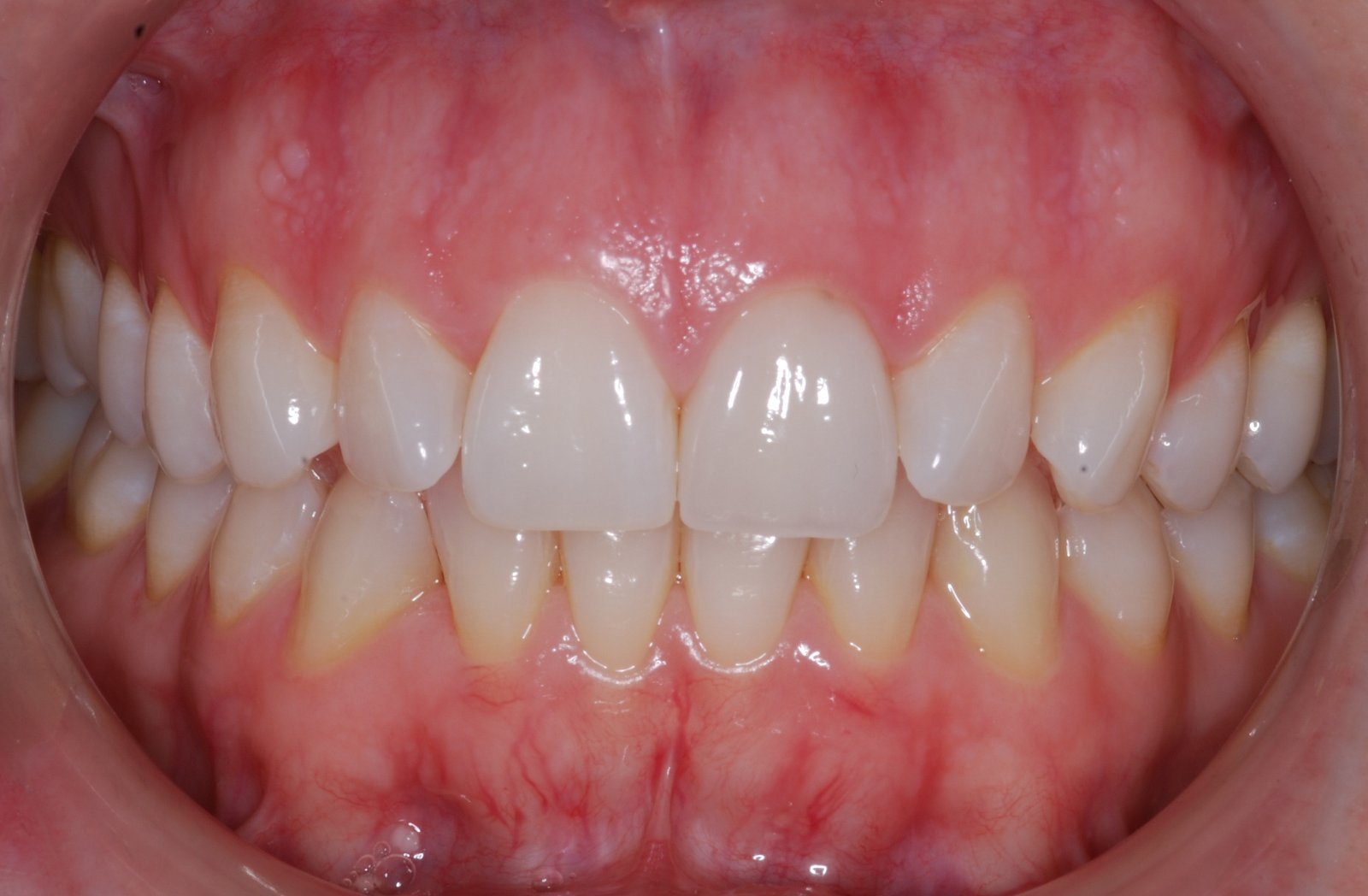 Do you know how your gums get affected Unhealthy Gums Color