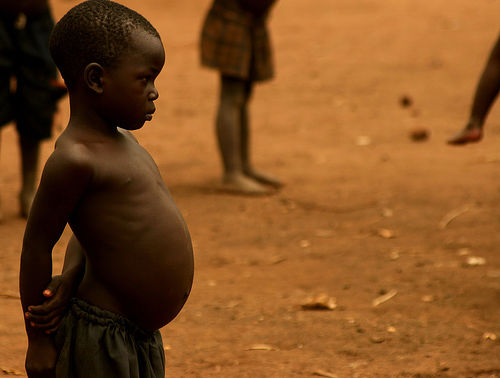 Kwashiorkor | definition of kwashiorkor by Medical dictionary