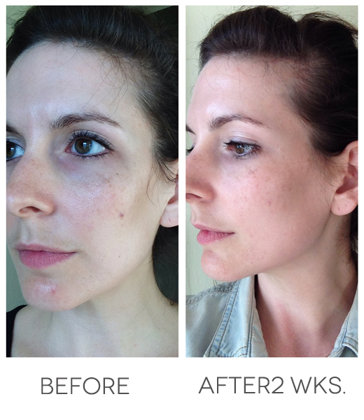 """rodan and fields before and after photos"""