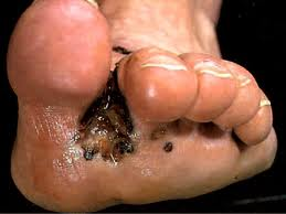 how to get glass out of foot under skin