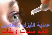 طريقة عملية الليزر للعيون سعر عملية الليزك تكلفة عملية الليزك نصائح بعد عملية الليزك للعيون