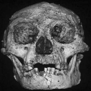 Penampakan Wajah Homo Florenensis Asal Flores