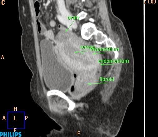 Ct Anatomy Of The Female Pelvis Ct Scan Tips Protocols