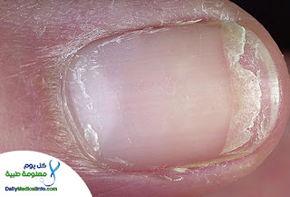 بالصور اظافرك عنوان صحتك Nails+(5)