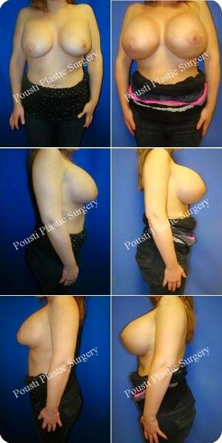 Recambio implantes de senos Precios para cambiar