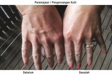 cara aman mengencangkan kulit tangan