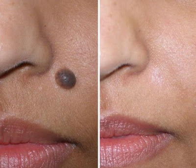 How to Spot Mole