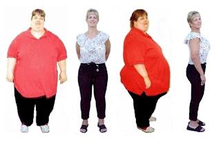 Bypass gastrico resultados