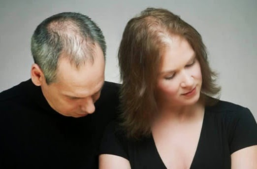 Baldness Problem in Men and Women