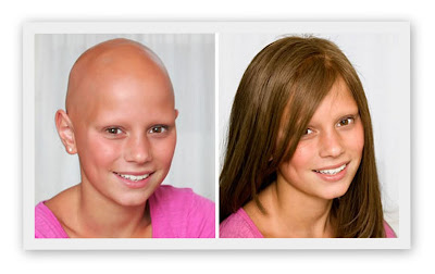Childrens with Hair Loss