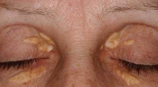 Xanthelasma in a 43-year-old patient with hyper-cholesterolemia.