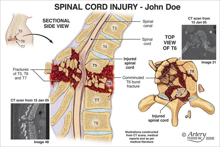 Osteochondroses lombare e sacrale lombare per comprare una cintura