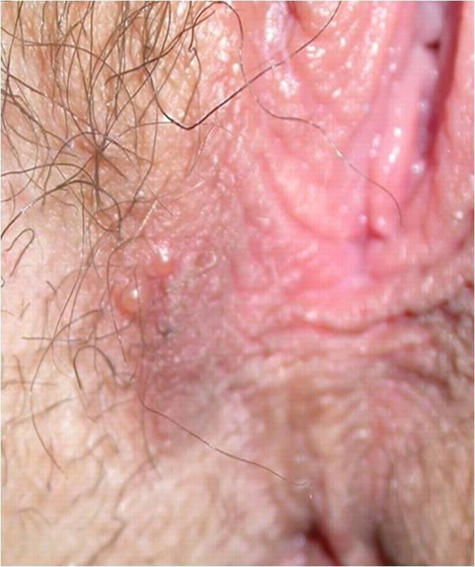 Sexy genital herpes on the anus pics MILF