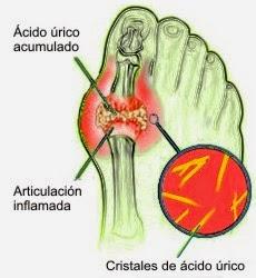 remedios caseros para acido urico