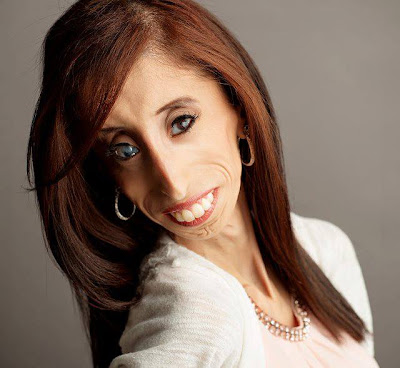 Lizzie Velasquez: A True Beauty From Within
