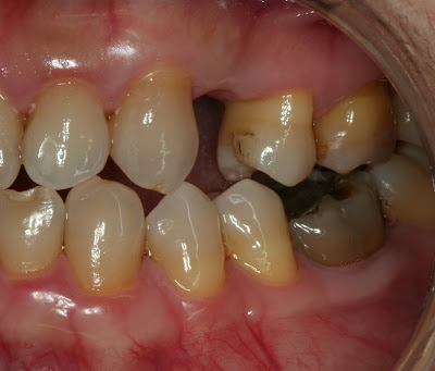 lateral teeth before implant