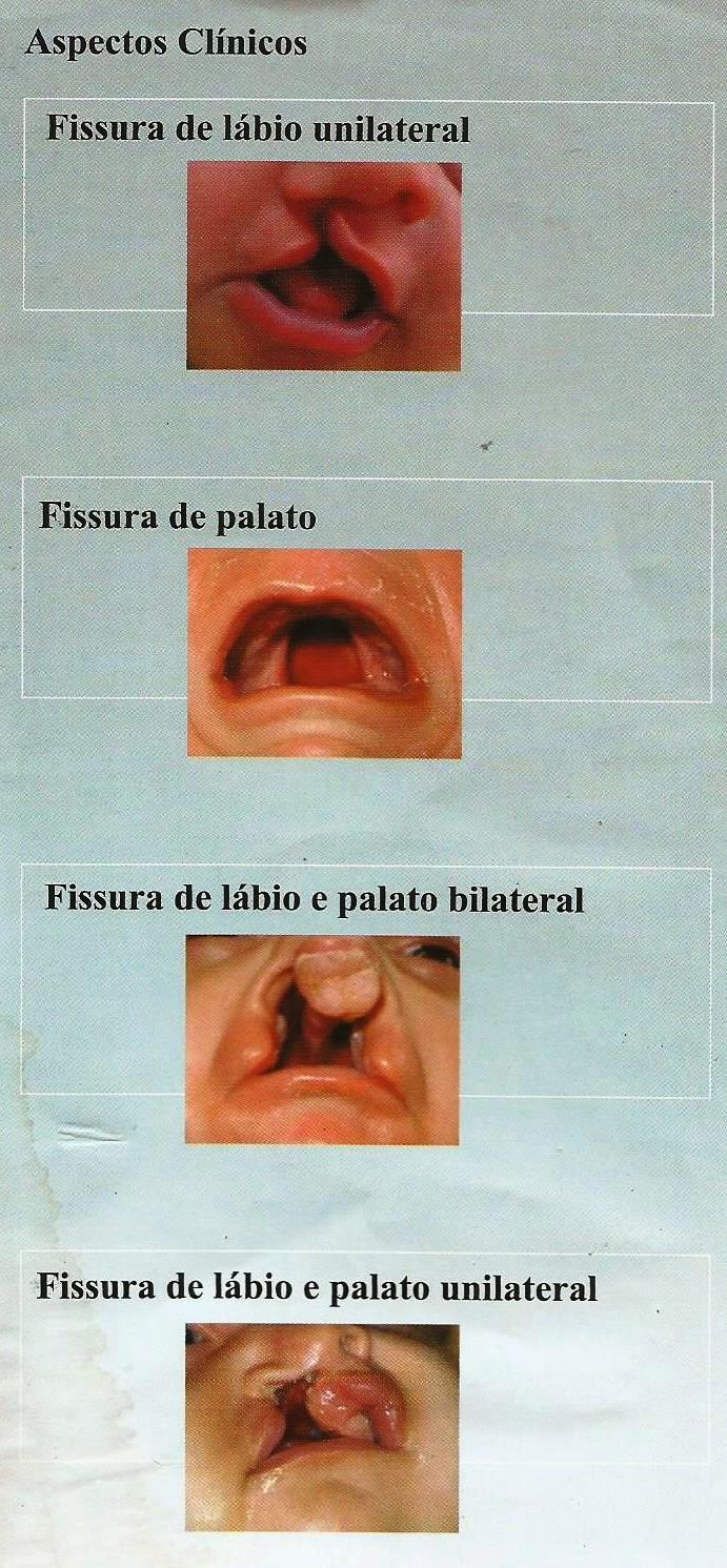 OS TIPOS DE FISSURA