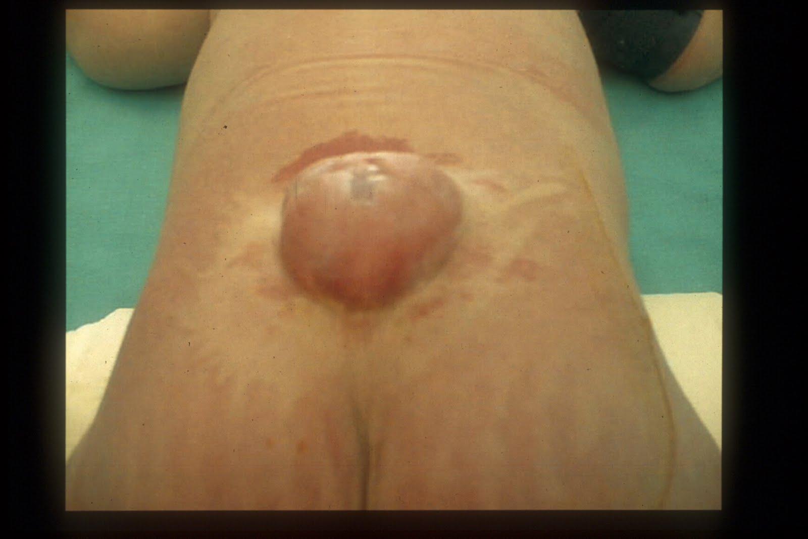 espina bifida en adolecentes