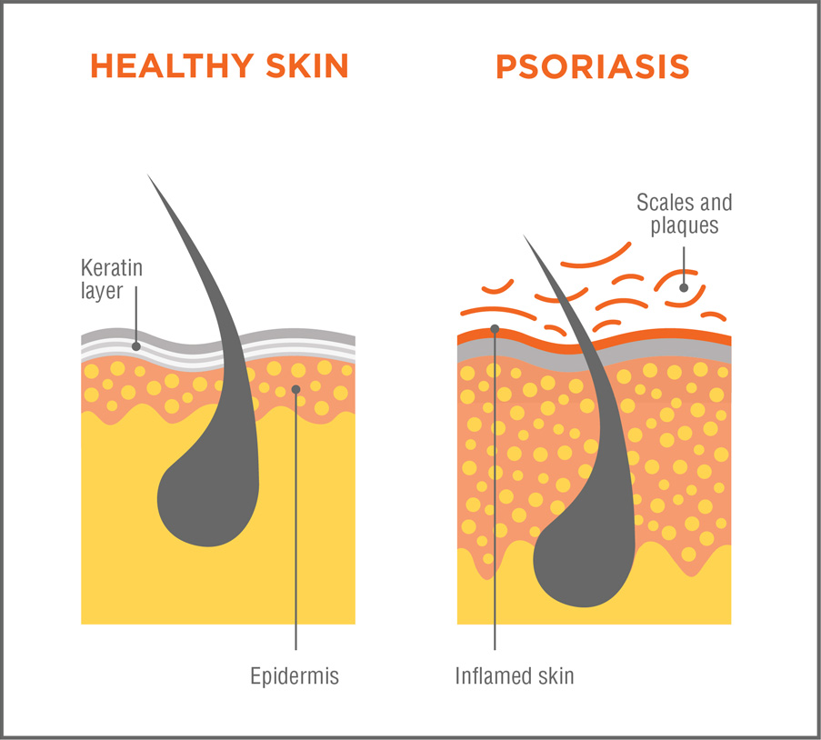 Psoriasis This usually occurs when skin cells grow rapidly and then accumulate on the surface of the skin 3