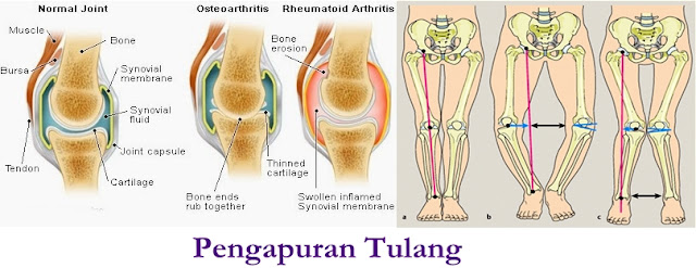 Pengobatan Tradisional Pengapuran Tulang