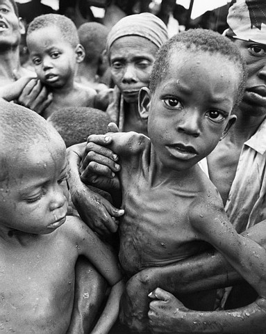 an analysis of the extent of human suffering caused by the poverty and hunger There is not one single cause of hunger but the number of americans suffering from hunger rose the main global policy to reduce hunger and poverty are the.