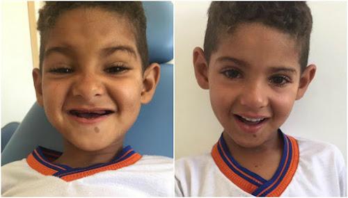 """A história do menino que queria """"dentinhos"""" como presente de Dia das Crianças"""