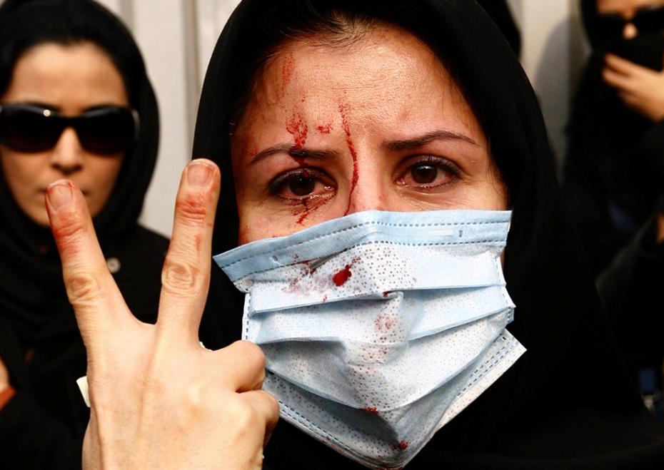Manifestante herida, haciendo el signo de la paz y la victoria (Teherán, Junio 2009) Amir Sadeghi.