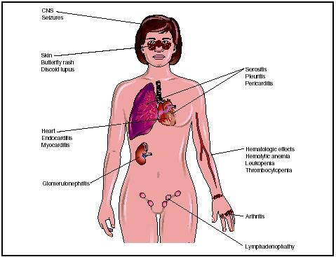 absorb medicine: systemic lupus erythematosus (sle), Skeleton