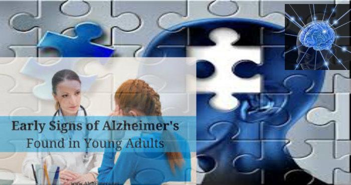Bisakah Alzheimer Menyerang Usia Muda
