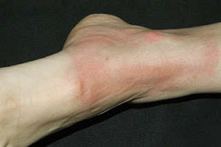 Cold Urticaria Hands Secret of Health: Cold...