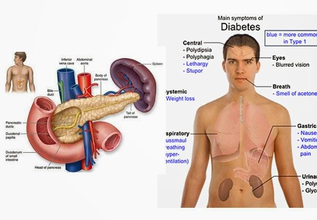 Glukosa Darah Berlebih Menyebabkan Diabetes Tipe 1 Dan Tipe 2