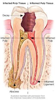 Penyebab sakit gigi dan kerusakan gigi