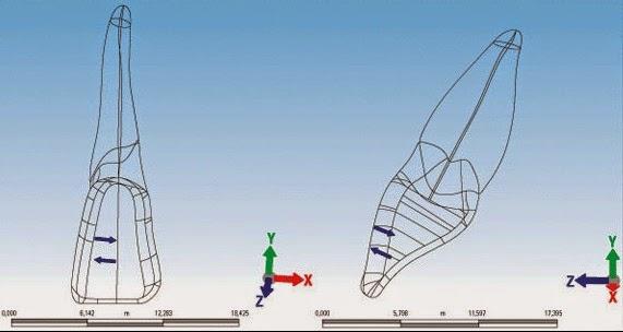 torque posterior