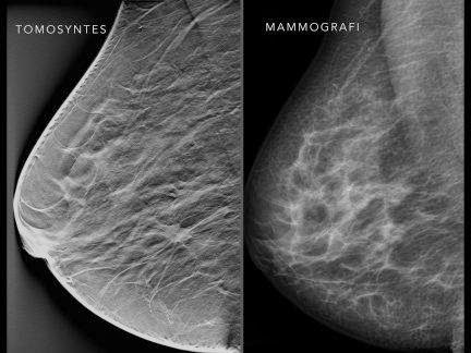 New Method Detects More Breast Cancer In Screening