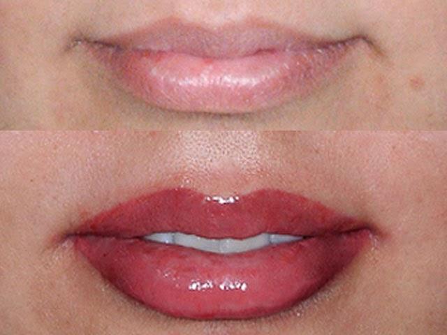 tatouage permanent levres - Evolution cicatrisation d'un maquillage permanent des lèvres
