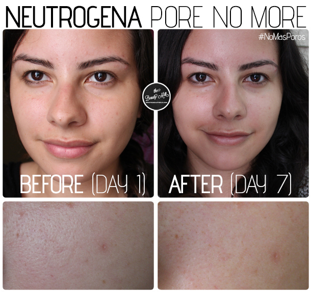 neutrogena pore refining cleanser toner moisturizer range review before after