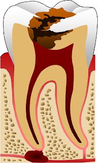 Tambal Gigi Cara Memutihkan Gigi