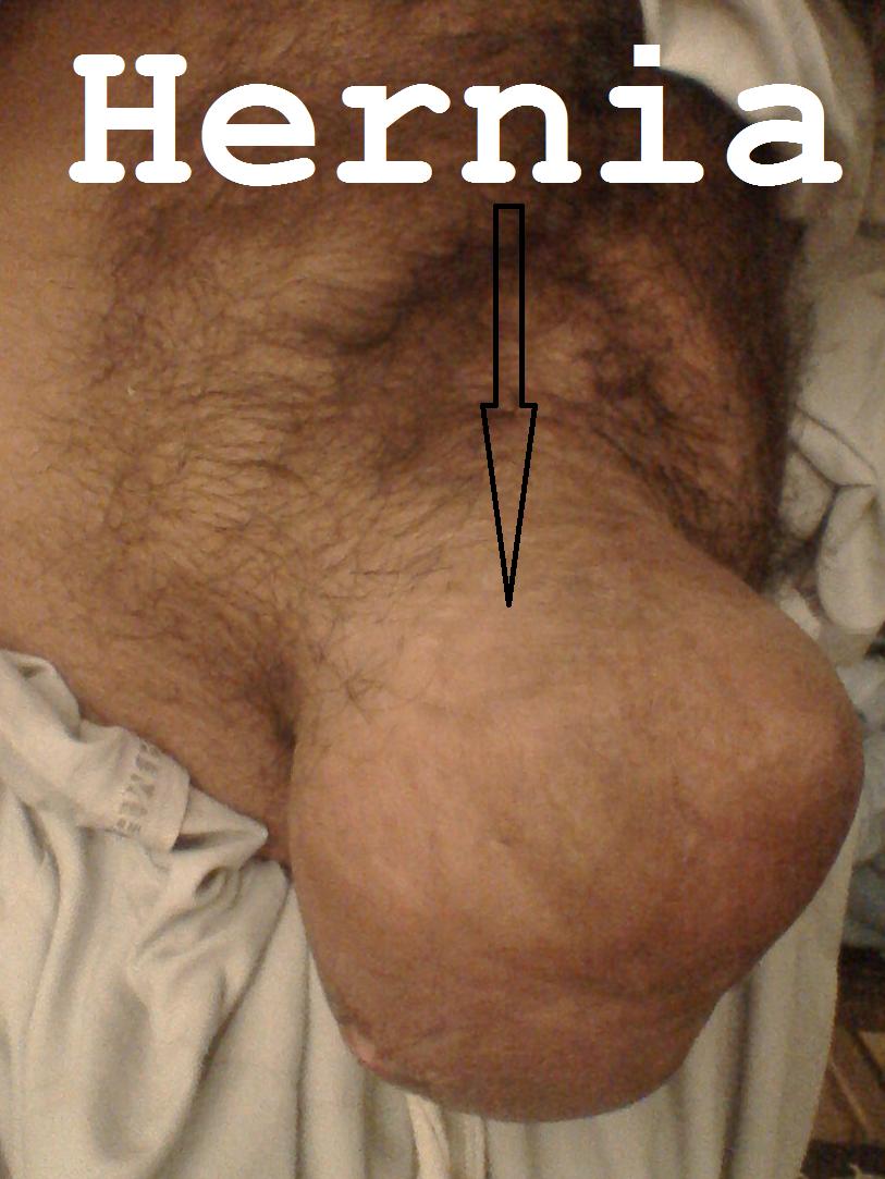 Hernia Pic 1