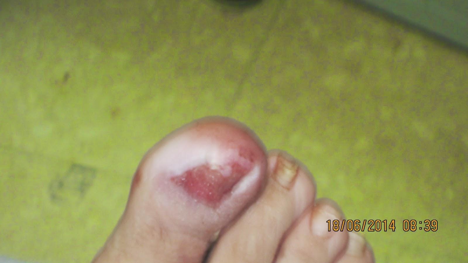 Body Art Siruela: Matricectomia total .Uñas del dedo pulgar ...