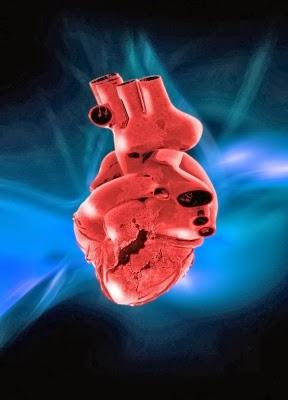 Takotsubo Broken Heart Syndrome