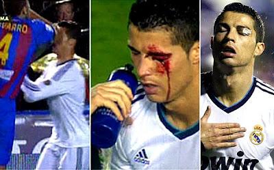 ¡Pelea entre jugadores del Levante y el Real Madrid!
