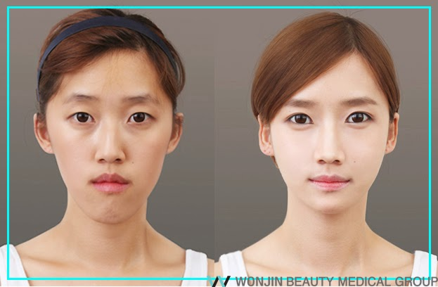 the_best_two_jaw_srgery_wonjin_plastic_surgery_korea