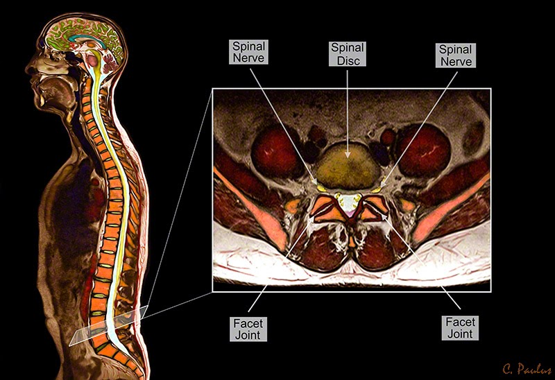 Color MRI showing axial Lumbar Spine Anatomy