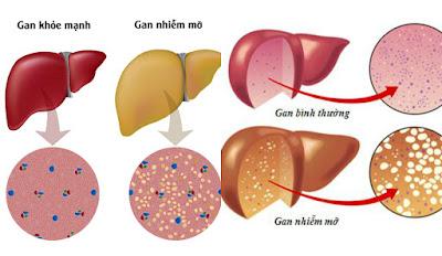 Làm sao nhận biết được bệnh gan nhiễm mỡ