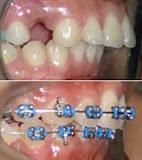 Gigi atas maju (7)